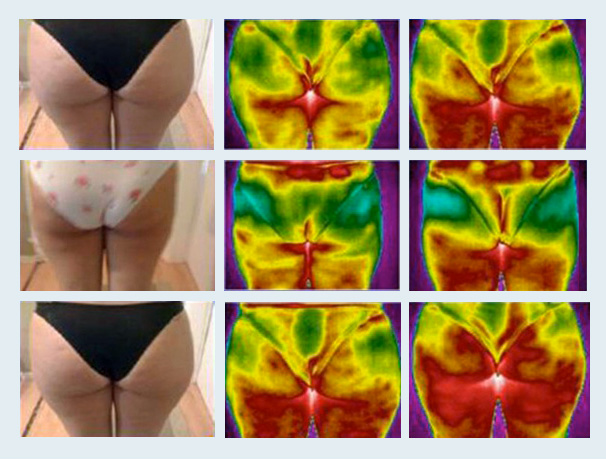 8220a69380b12 ... Scala Bio Anti Cellulite Shapewear working to fight cellulite. Active  Bio-Crystals increase microcirculation